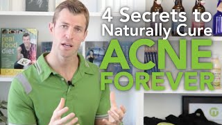 4 Secrets to Get Rid of Acne Naturally