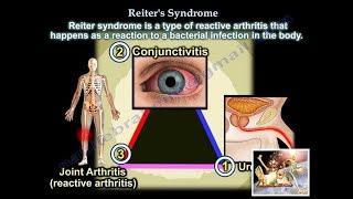 Reiter's Syndrome Reactive Arthritis - Everything You Need To Know - Dr. Nabil Ebraheim