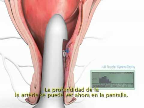 Tratamiento hemorroides internas DGHAL
