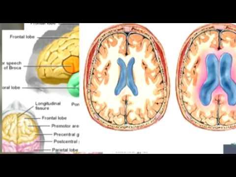 Intracrainal Hypertension