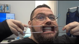 FINALLY Getting My Teeth Fixed!  Getting FULL Dental Implants By G4byGolpa!