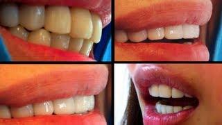 ครอบฟัน วีเนียร์ขั้นเทพ (Dental Veneers)