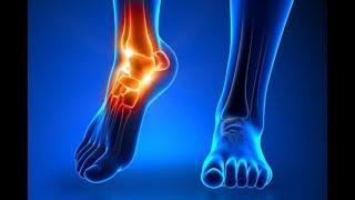العلاج الطبيعي الرائع و الذي لن يخطر على بالكم يقضي على آلام المفاصل و العظام!