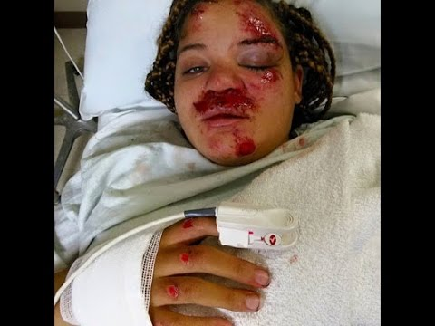 Woman Gets Beaten Mercilessly For Confronting Husband's Mistress Graphic Photo