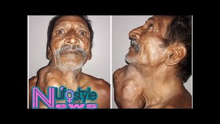 Man with 1.4kg tumour has life-changing surgery after ignoring lump for 20 years