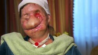 Woman Shows Face After Chimp Attack - GRAPHIC VIDEO