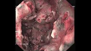 Endoscopy Master Video: Gastric antrum vascular ectasia & argon plasma ablation