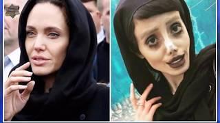 فتاة إيرانية تخضع لـ50 عملية تجميل لتبدو مثل أنجلينا جولي فتتحول الى مسخ