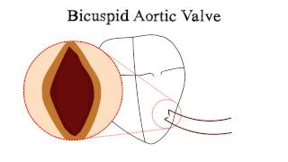 Bicuspid Aortic Valve (BAV) and Aortic Stenosis