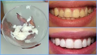 HOW TO WHITEN TEETH IN 3 MINUTES AT HOME, GET RID OF YELLOW TEETH |Khichi Beauty