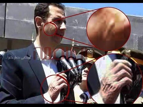 ماهو سر المرض الغريب الذي ظهر على بشار الأسد؟ هنا سوريا