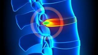 ☞ 6 Remedios caseros para la hernia discal o de disco