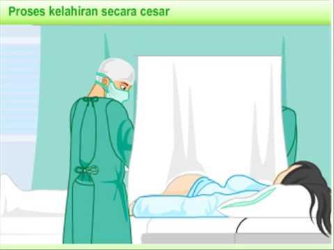 kelahiran cesar.flv