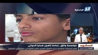 المشهد اليمني - مشروع إعادة تأهيل أطفال اليمن