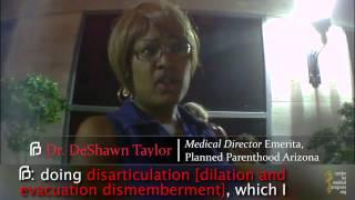 Planned Parenthood Abortionist: