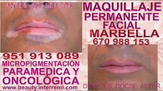 Tratamiento Del Vitiligo Anti Vitiligo Cura para el Vitiligo cura para vitiligo,