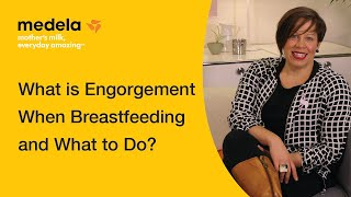 What to do if your breasts are engorged