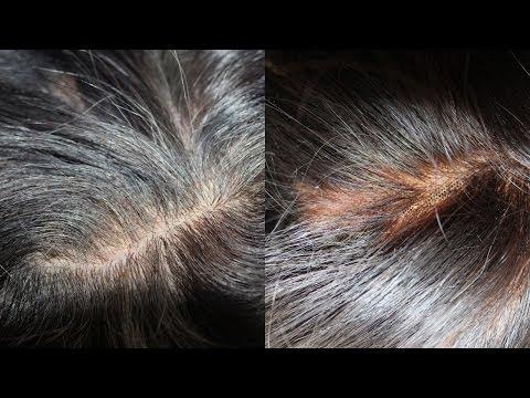 Silk Closure vs Lace Closure