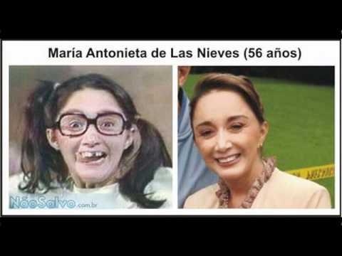 Chaves Antes e depois dos atores