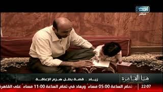 هنا القاهرة | مأساة زياد... طفل بدون أطراف
