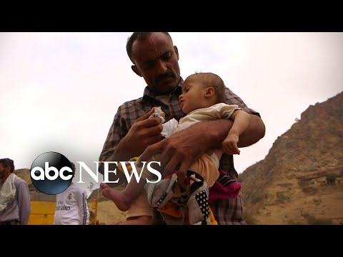 Xxx Mp4 Inside Yemen S Civil War Where 8 Million People Are On The Brink Of Starvation 3gp Sex