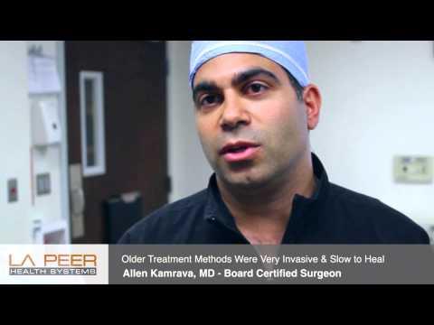 Pilonidal Disease Treatment in Los Angeles Rhomboid Flap
