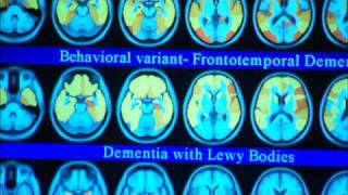 Imaging Dementia-Mayo Clinic