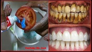 Magical Teeth Whitening Remedy, Get whiten Teeth at home in 2 minutes
