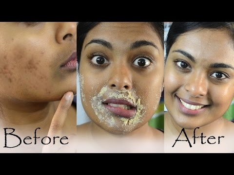 How To Get Rid Of Hyperpigmentation, Dark Upper Lip, Dark Spots & Acne Scars Naturally At Home
