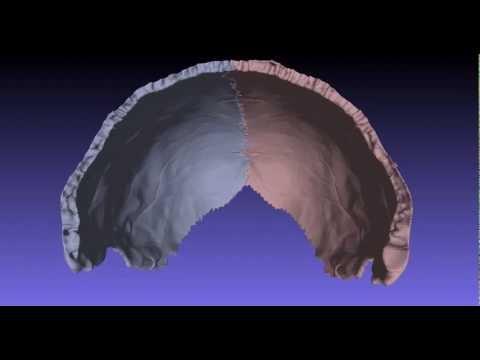 Guided Anatomical Visualization Parietal Bone