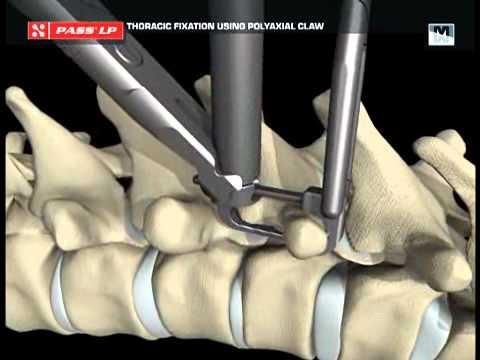 Cirurgia com Dr. J.L. Clement Montagem escoliose