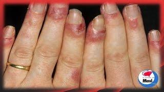 Remedios caseros y naturales para el lupus