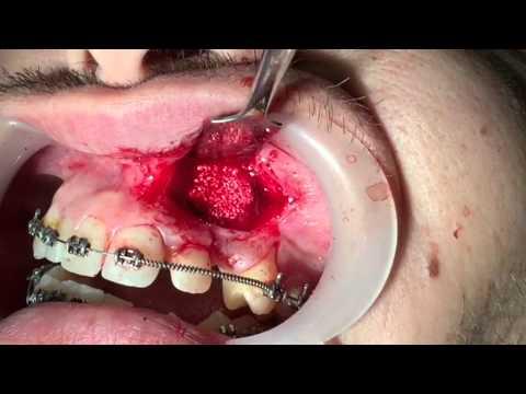 Extracción de canino incluido vestibular