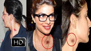 Bollywood Celebs Caught With Love Bites- Kareena, Deepika, Priyanka & Katrina