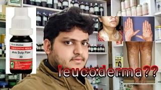 leucoderma vitiligo treatment by homeopathic medicine?? explain!