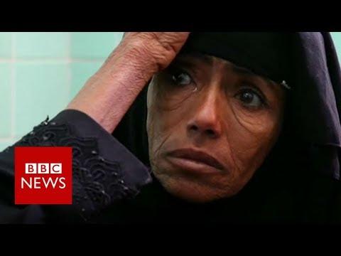Xxx Mp4 On Brink Of Worst Famine In 100 Years BBC News 3gp Sex