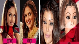Bollywood's Biggest Cosmetic Surgery Disasters, Bitter Divorces & More