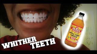 DIY Teeth Whitener | Apple Cider Vinegar