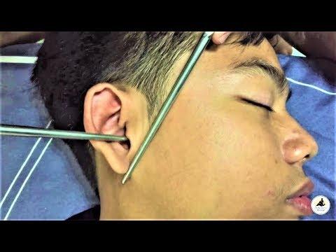Xxx Mp4 ASMR Relaxing Ear And Face Massage With Chopsticks 3gp Sex