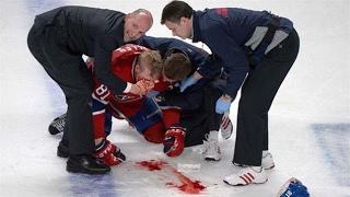 Top 5 NHL Injuries (BEWARE)
