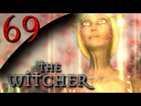 Xxx Mp4 Mr Odd Let S Play The Witcher Part 69 Alina You Look Different 3gp Sex
