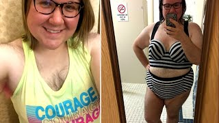 Woman Embraces Extreme Body Hair After Life-Changing Accident