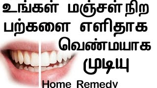 Best Natural Home Remedy For Yellow Teeth