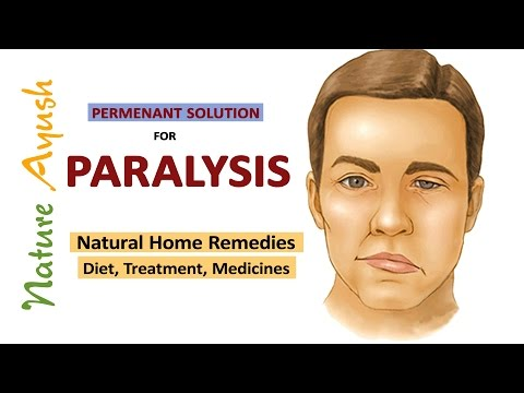 Paralysis : Permanent Solution & Natural Home Remedies for Paralysis By Dr. Ramakrishna Ivaturi