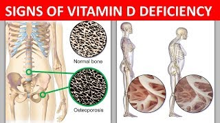 Warning Signs of Vitamin D Deficiency