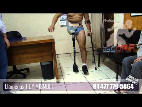 Prótesis para Desarticulaciones de Cadera