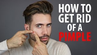 How To Get Rid of a Pimple Overnight   Fast Pimple and Acne Treatments   Alex Costa