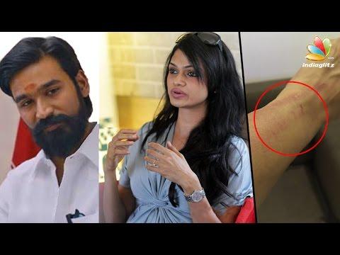 Xxx Mp4 Singer Suchitra Was Manhandled Complains Against Dhanush Hot Tamil Cinema News 3gp Sex
