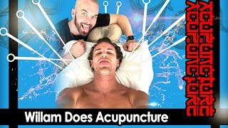 Willam does Acupuncture