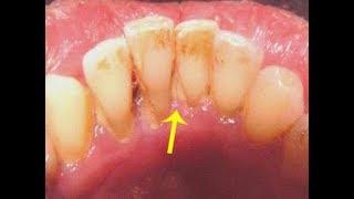 هل تعلم أن غسول الفم هذا يزيل الجير من الأسنان في 15 دقيقة !